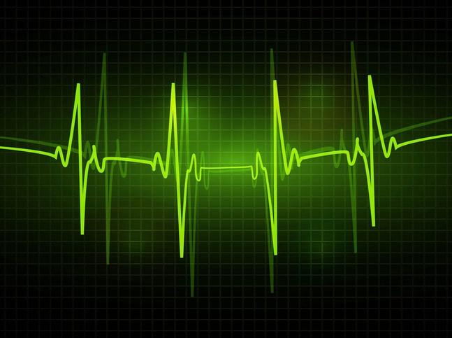 ECG Vector free